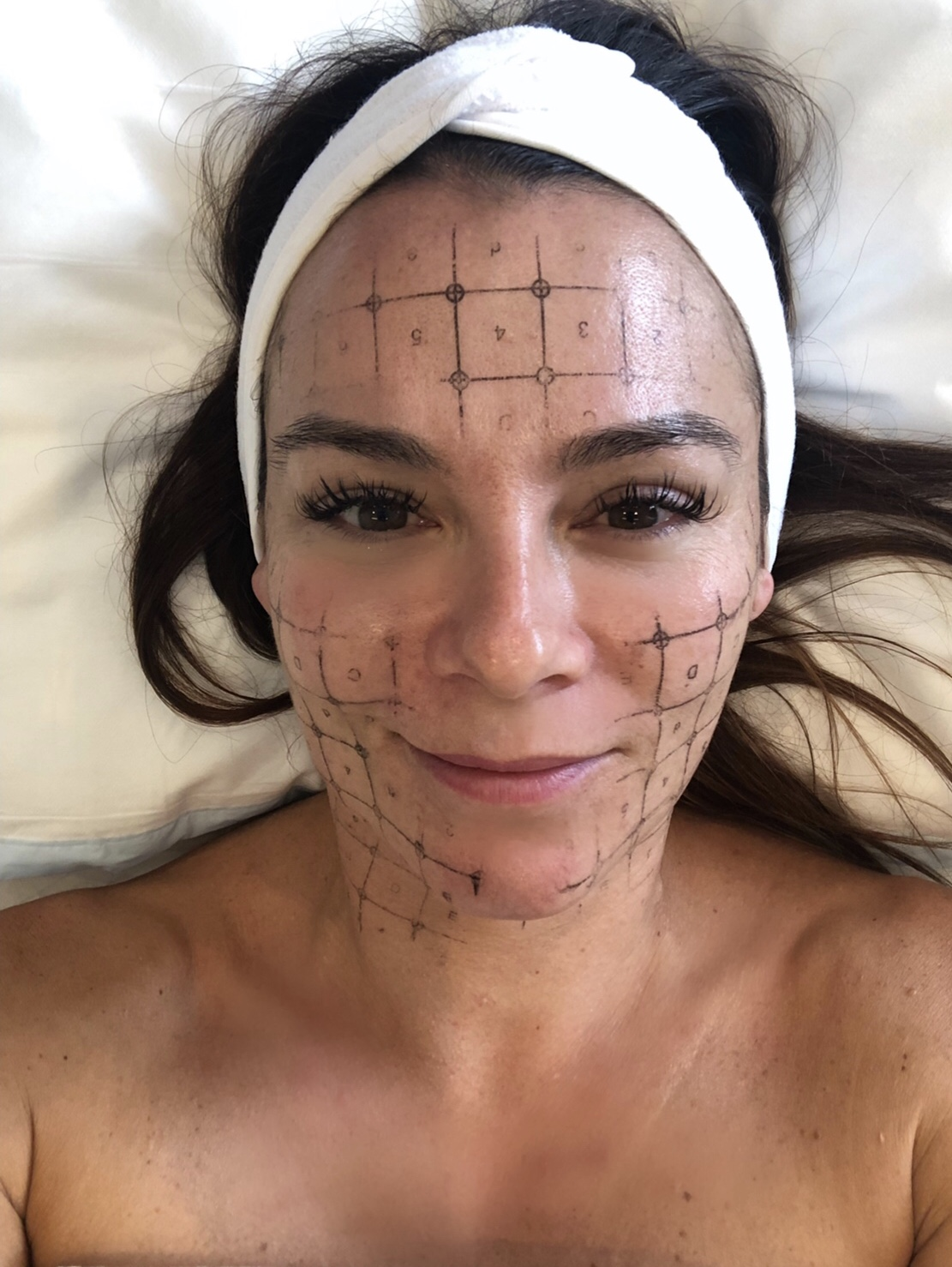 Road test- and Review of Thermage FLX non-surgical face lift