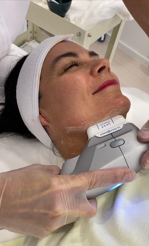 Renae undergoing the Ultraformer III facial lifting procedure.